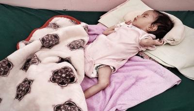 الصحة العالمية: 3 من كل 4 أربعة أطفال في اليمن يعانون سوء التغذية
